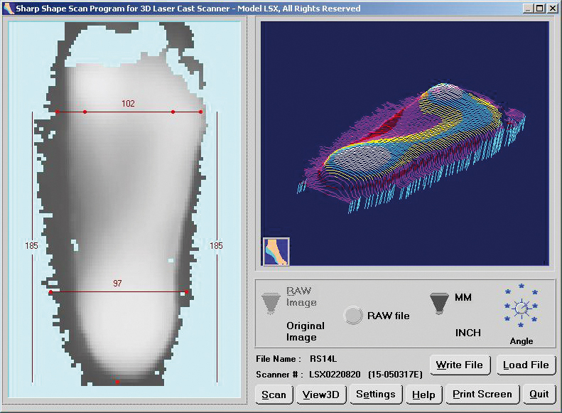Rightstride Orthotics AB physio services The Process_Scan picture